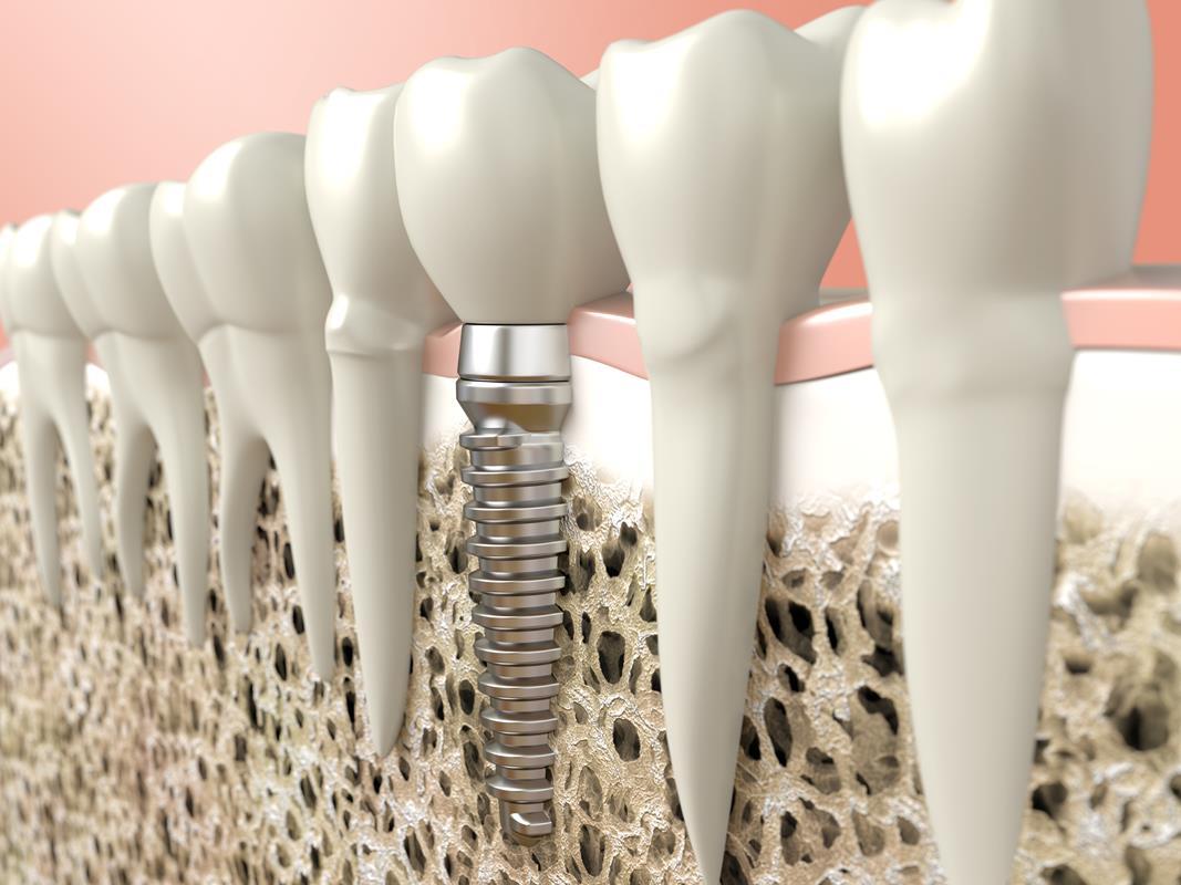 Dental Implants  Dover, PA