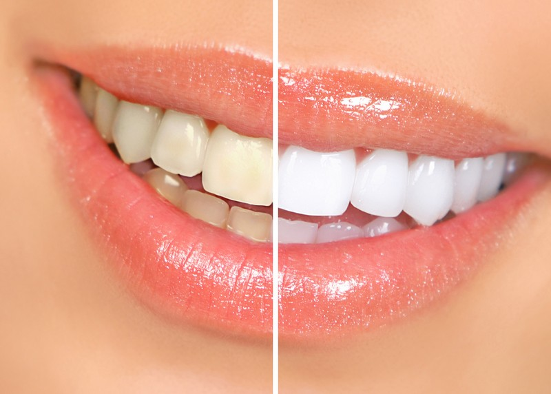 Teeth Whitening  Dover, PA